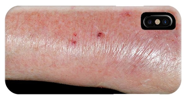 Infected Cat Bite On The Wrist Phone Case by Dr P. Marazzi/science Photo Library