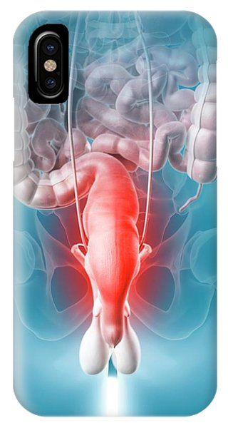 Inflamed Rectum Phone Case by Sciepro