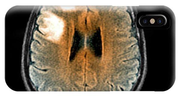 Brain Scan iPhone X Case - Leukoencephalopathy by Zephyr
