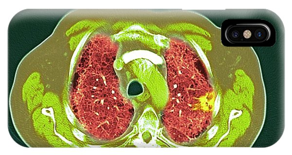 Lung Cancer Phone Case by Dr P. Marazzi