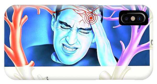Migraine Phone Case by John Bavosi
