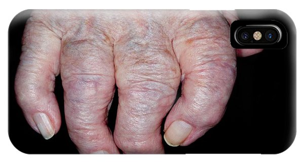 Osteoarthritis Of The Hand Phone Case by Dr P. Marazzi/science Photo Library