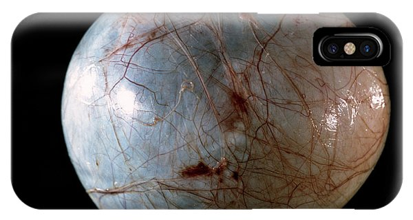 Ovarian Cyst Phone Case by Cnri/science Photo Library