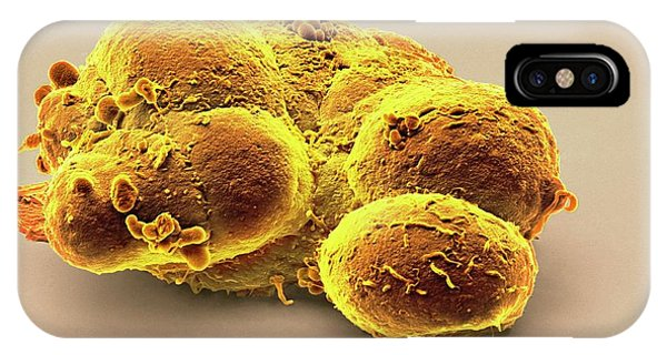 Controversial iPhone Case - Pluripotent Stem Cells by Steve Gschmeissner