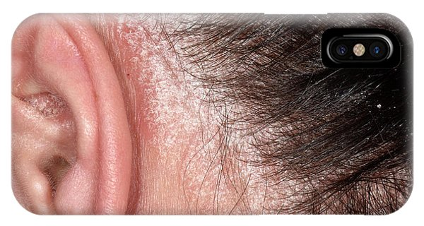 Chronic iPhone Case - Psoriasis On The Scalp by Dr P. Marazzi/science Photo Library