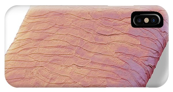 Adapted iPhone Case - Seal Hair by Steve Gschmeissner