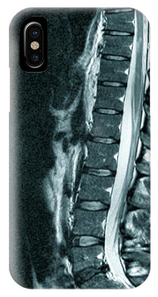Spine In Multiple Sclerosis Phone Case by Zephyr/science Photo Library
