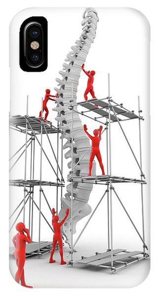 Spine With Workers Phone Case by Alfred Pasieka/science Photo Library