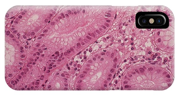 Stomach Metaplasia Phone Case by Cnri/science Photo Library