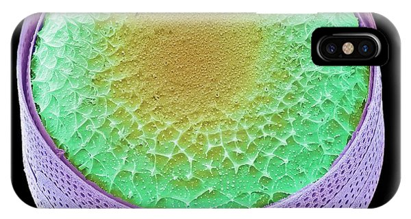 Unicellular iPhone Case - Thalassiosira Diatom by Steve Gschmeissner
