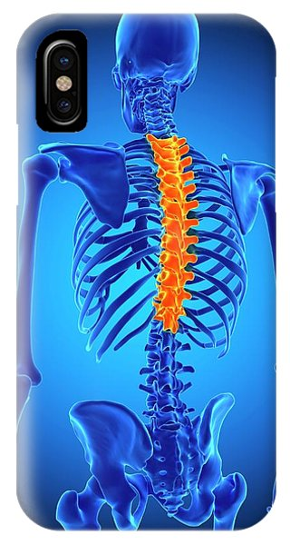 Chronic Pain iPhone Case - Thoracic Spine by Sebastian Kaulitzki/science Photo Library