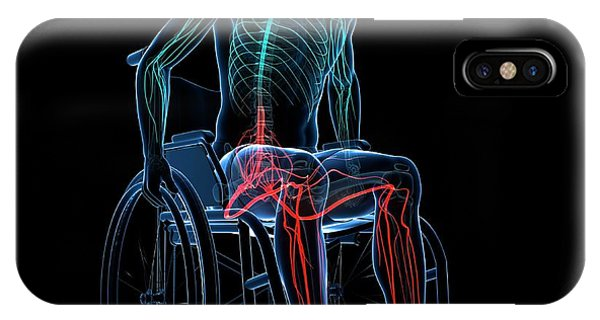 Man In A Wheelchair Phone Case by Sciepro/science Photo Library