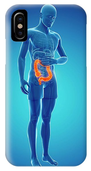 Abdominal Pain Phone Case by Sciepro/science Photo Library
