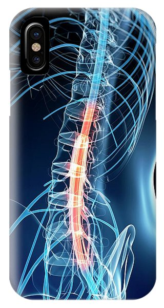 Human Spinal Cord Phone Case by Sebastian Kaulitzki