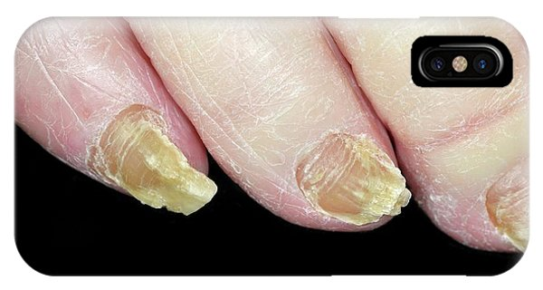 Fungal Nail Infection Phone Case by Dr P. Marazzi/science Photo Library