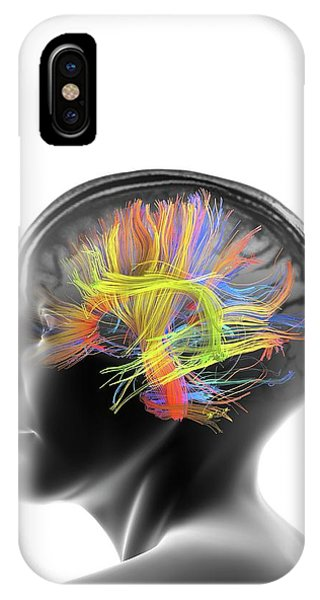 Brain Scan iPhone X Case - White Matter Fibres Of The Human Brain by Alfred Pasieka