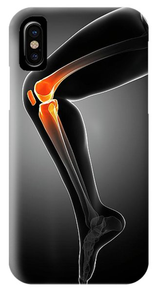 Knee Pain Phone Case by Sciepro/science Photo Library