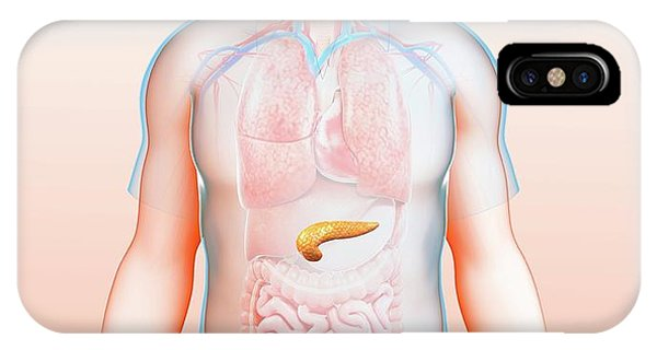 Male Pancreas Phone Case by Pixologicstudio/science Photo Library
