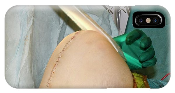 Dressing iPhone Case - Knee Replacement Surgery by Dr P. Marazzi/science Photo Library