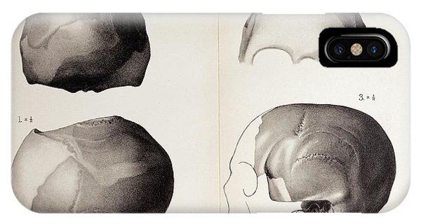 1913 Toned Skull Plate Piltdown Man Hoax IPhone Case