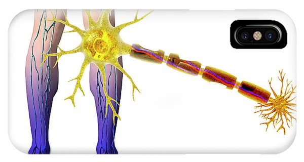 Nerves iPhone Case - Diabetic Neuropathy by Carol & Mike Werner
