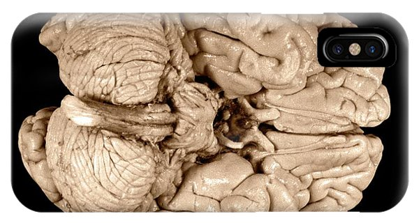 Neurology iPhone Case - Einstein's Brain by Otis Historical Archives, National Museum Of Health And Medicine