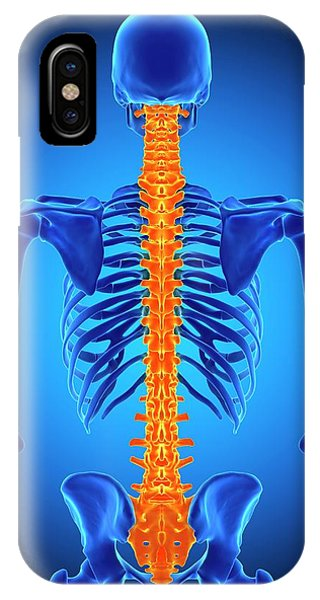 Chronic Pain iPhone Case - Human Spine by Sebastian Kaulitzki/science Photo Library