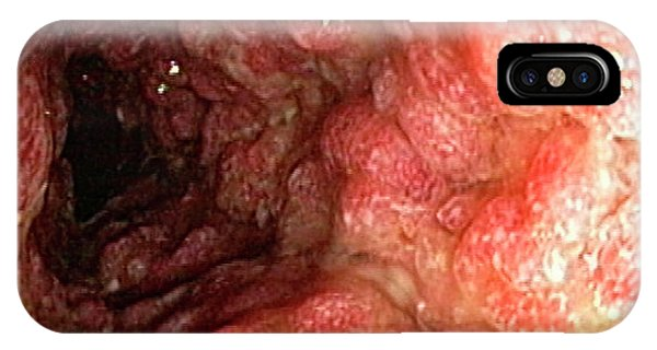 Inflammatory Polyps In Ulcerative Colitis IPhone Case