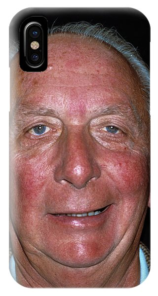 Neurology iPhone Case - Ramsay Hunt Syndrome by Dr P. Marazzi/science Photo Library