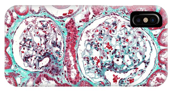 Renal Corpuscle IPhone Case