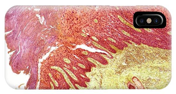 Skin Cancer IPhone Case
