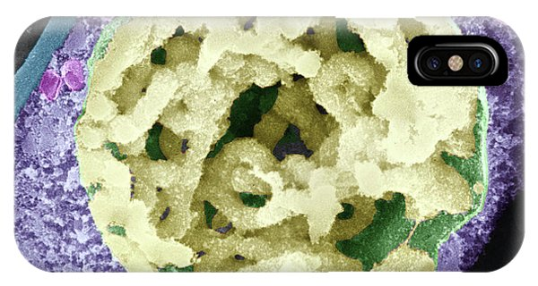 Tradescantia iPhone Case - Dividing Pollen Cell by Professor T. Naguro