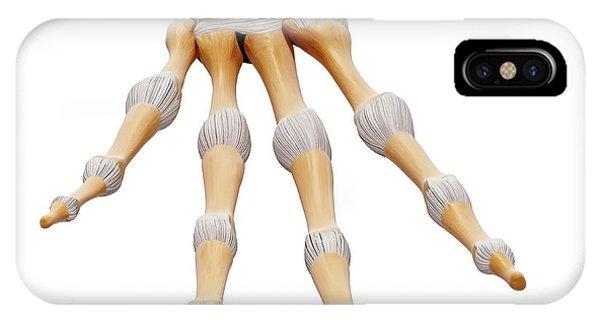 Human Hand Bones Phone Case by Pixologicstudio/science Photo Library