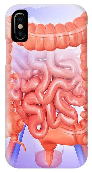 Diverticulitis Phone Case by Pixologicstudio