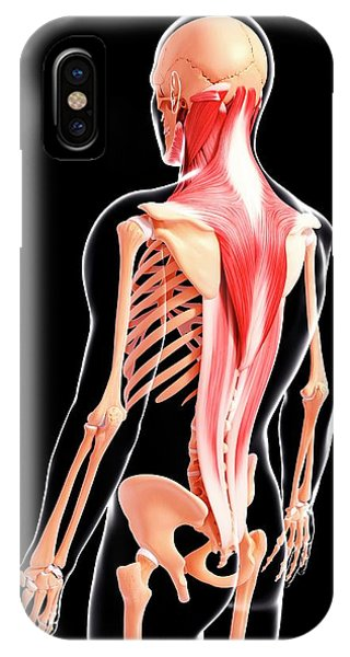 Human Musculature Phone Case by Pixologicstudio/science Photo Library
