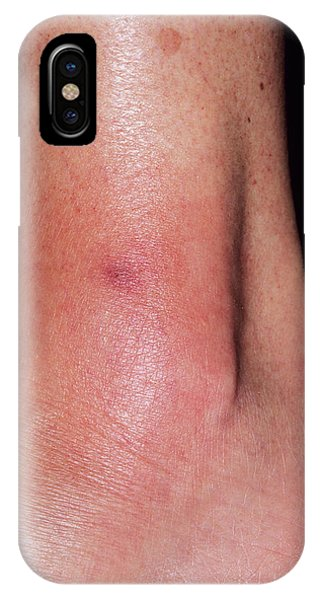 Cellulitis Phone Case by Dr P. Marazzi/science Photo Library
