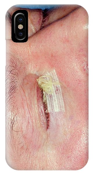 Dressing iPhone Case - Excision Of A Basal Cell Skin Cancer by Dr P. Marazzi/science Photo Library