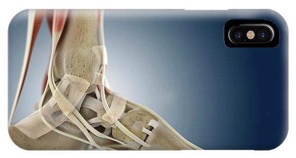 Foot Anatomy Phone Case by Springer Medizin/science Photo Library