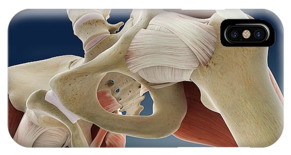 Hip Anatomy Phone Case by Springer Medizin/science Photo Library