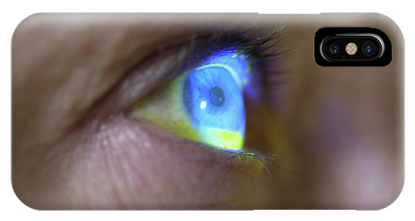 Eye Ball iPhone Case - Measuring Eye Pressure by Dr P. Marazzi/science Photo Library