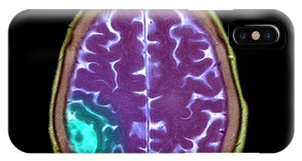 Meningioma Tumour Phone Case by Simon Fraser/science Photo Library