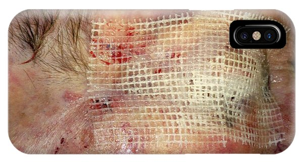 Dressing iPhone Case - Skin Cancer Surgery by Dr P. Marazzi/science Photo Library