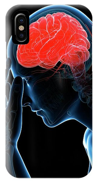 Headache Phone Case by Sciepro/science Photo Library