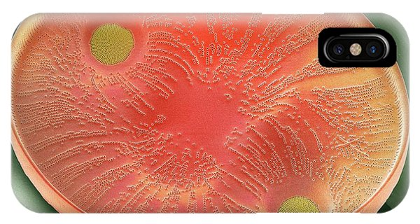 Phytoplankton iPhone Case - Diatom by Steve Gschmeissner