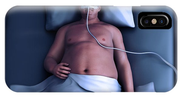 Sleep Apnea IPhone Case