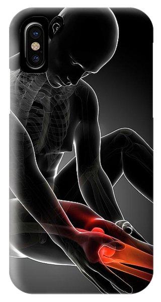 Human Knee Pain Phone Case by Sebastian Kaulitzki