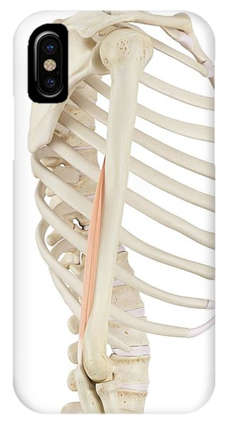 Human Arm Muscles Phone Case by Sciepro