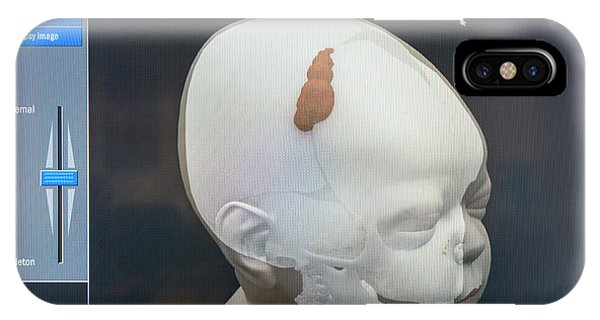 3d Virtual Autopsy Of A Child IPhone Case