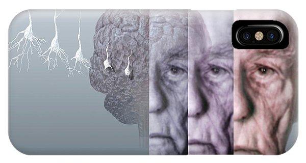 Neurology iPhone Case - Alzheimer's Disease by Hans-ulrich Osterwalder