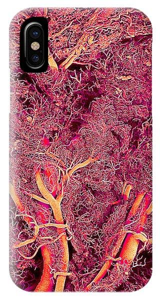 Blood Vessels Phone Case by Susumu Nishinaga